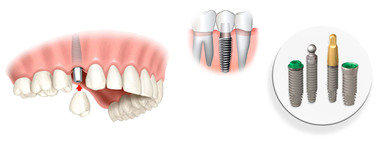 implants dental